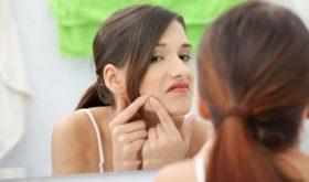 Угревая сыпь в подростковом возрасте: помощь от родителей