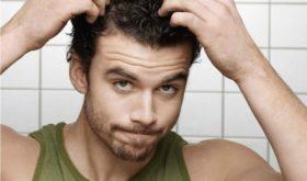 Эксперты назвали главные причины мужского облысения