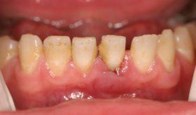 Как происходит снятие зубных отложений с помощью ультразвука