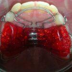 История создания несъемного ортодонтического аппарата
