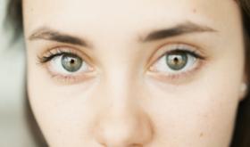 Мешки и круги под глазами: причины возникновения и способы борьбы