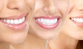 С белоснежной улыбкой к успеху… или отбеливание зубов для девушек!