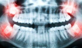 Стоматологическая процедура — кюретаж пародонтального кармана