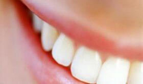 Какие способы удаления зубного камня предлагают стоматологические клиники
