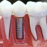 Имплантация зубов – от планов к действиям