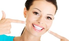 Несколько способов по отбеливанию зубов дома