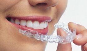 Ортодонтия — с чем ее едят?