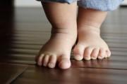 Возможные методы лечения косолапия у детей