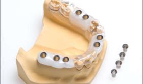 Хирургические шаблоны для имплантации зубов