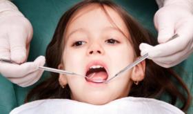 Серебрение зубов детям: достоинства и недостатки этого метода
