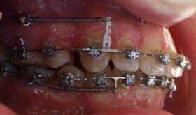 Применение микроимплантов — прорыв в ортодонтии