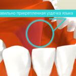 Необходимость и методики френулопластики